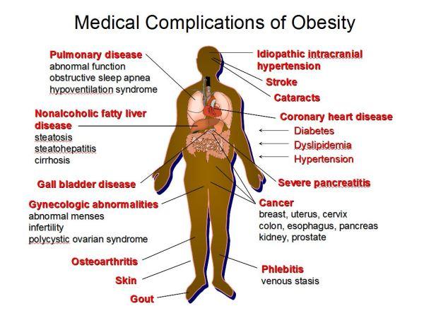 medical_obesity